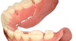 AvaDent_conversion_denture