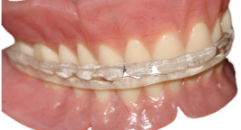 AvaDent_occlusal_lockingsplint