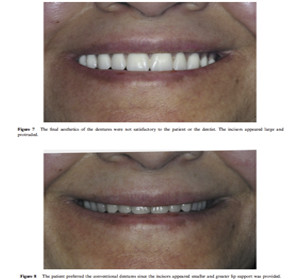 Overdenture articl image