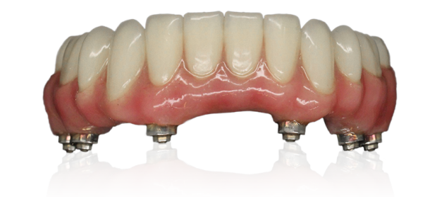 XCL-2 Hybrid Wrap-Around Plus staining op 6 implantaten