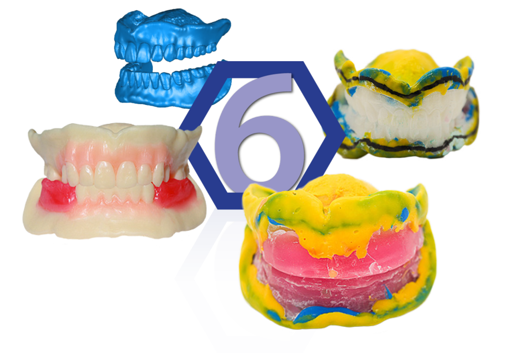 Record Methods - AvaDent Digital Dentures